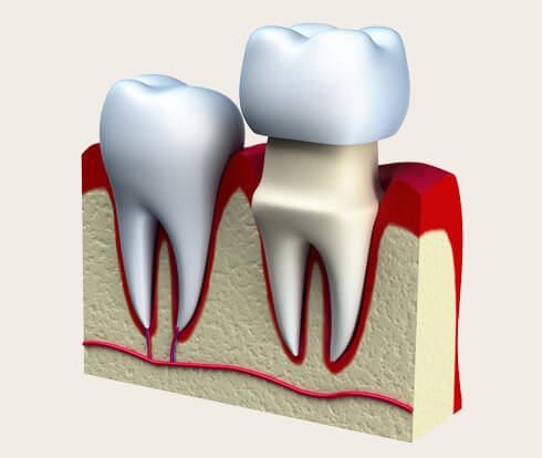 diagram of a dental crown