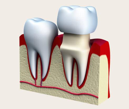 diagram of a dental crown