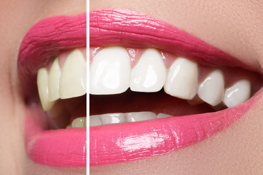 Close up smile with pink lipstick showing before and after teeth whitening.