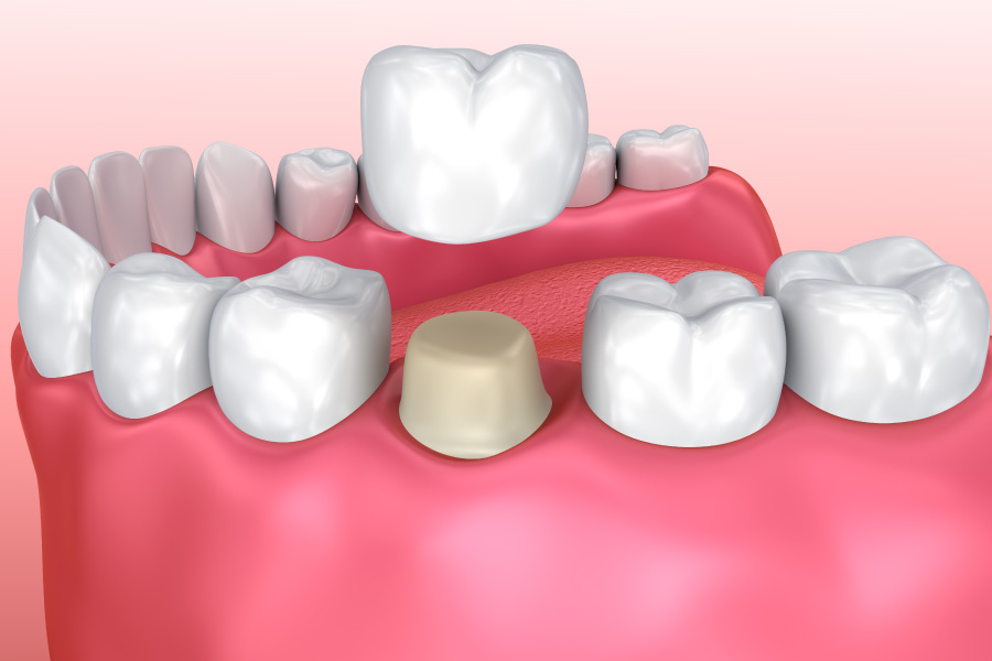 Graphic showing a dental crown on a bottom tooth.